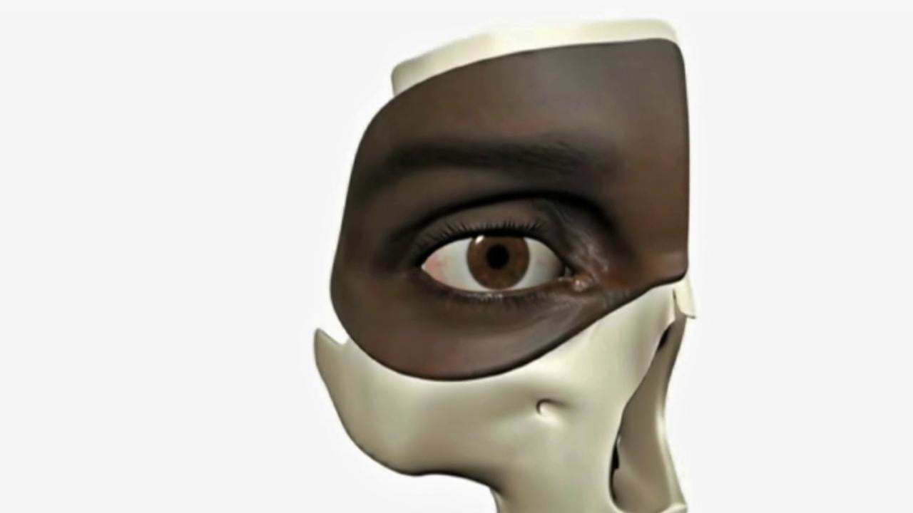 Trichiasis-surgery-training-Chapter-3-Anatomy-of-the-Eyelid ...
